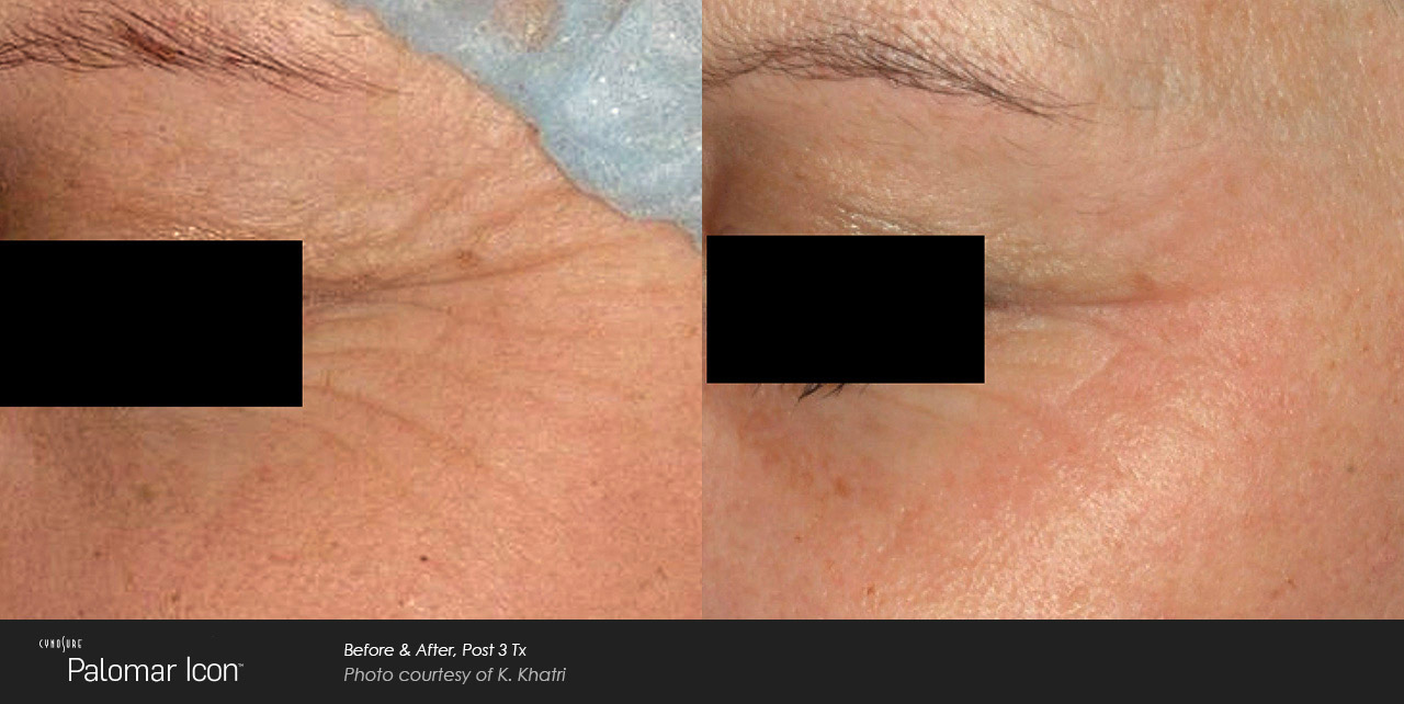 Woman's face after recieving IPL skin treatment
