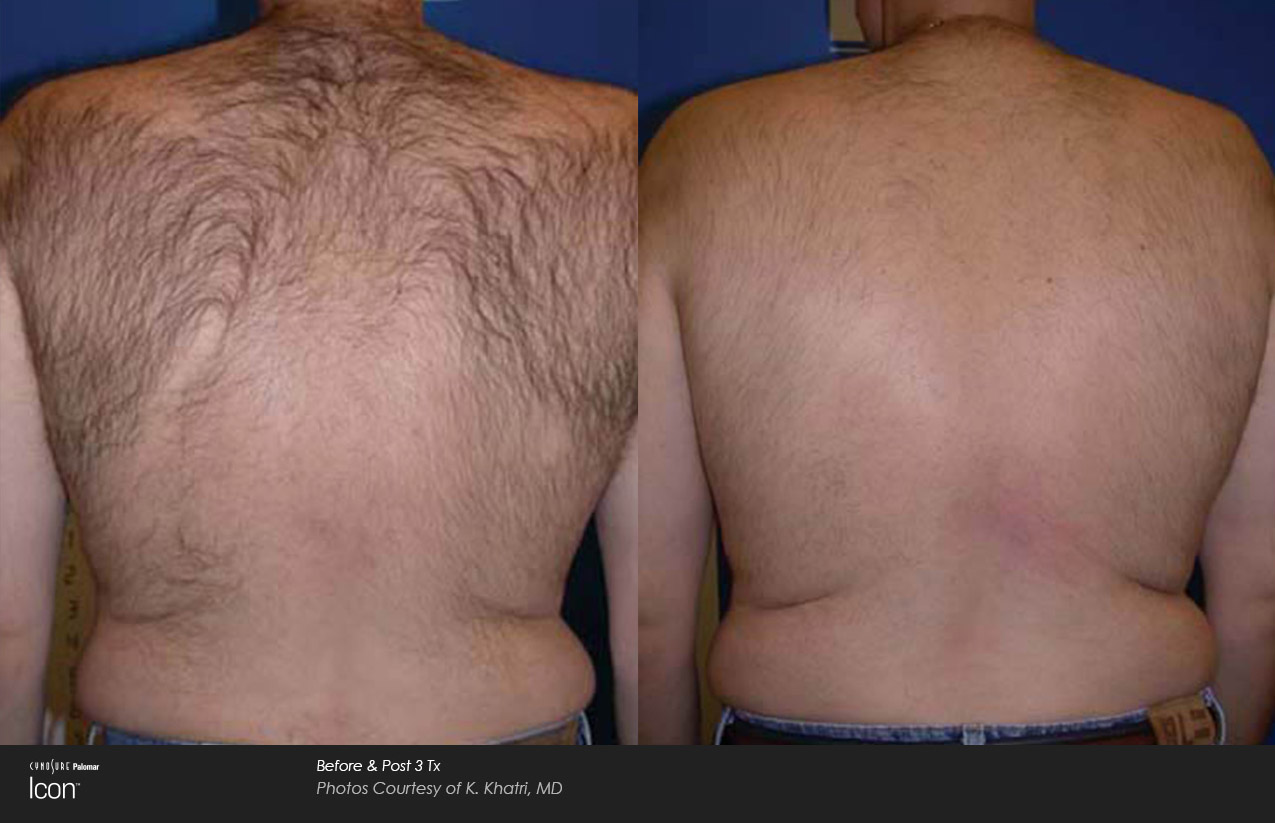 Man's hairy back, before and after hair reduction treatment.