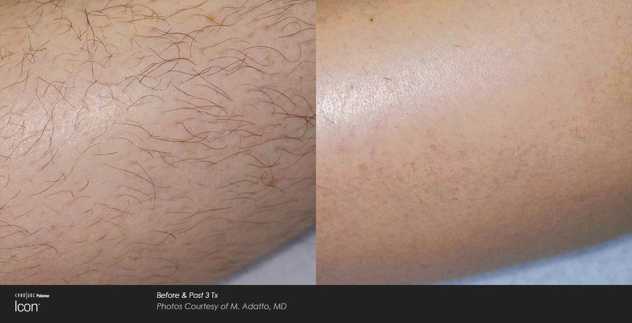 Woman's hairy arm before and after hair removal treatment.
