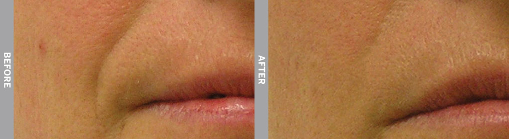 Woman's lips after recieving hydrafacial service.