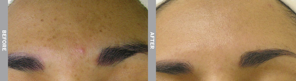 Woman's eyebrows and forehead after recieving hydrafacial service.