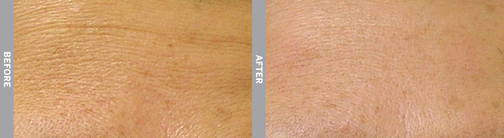 Skin improvement on woman's arm after recieving hydrafacial service.