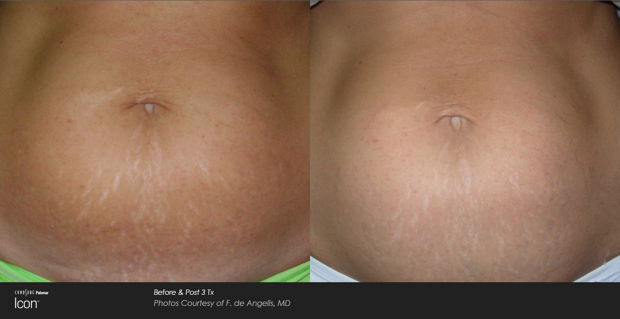 Woman's stomach after recieving laser stretch mark treatment.