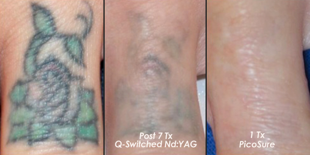 Woman's arm after tattoo removal